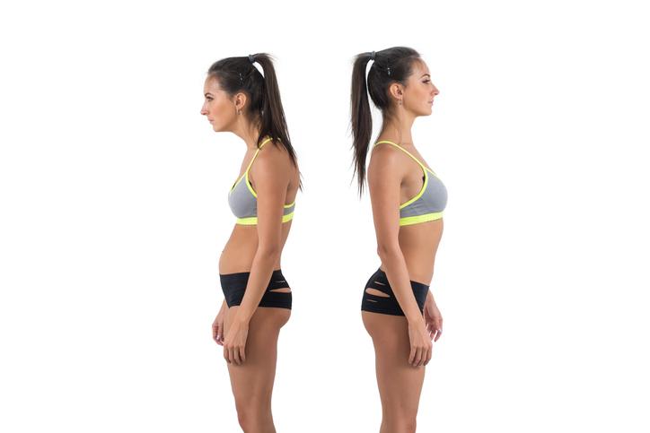 Correção postural